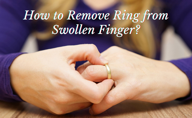 How to Remove Ring from Swollen Finger