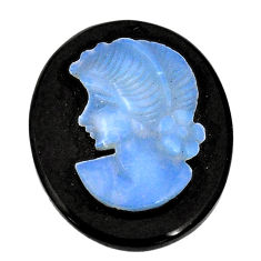 Natural 13.45cts opal lady cameo on black onyx 25x20 mm loose gemstone s8477